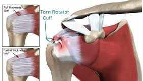 Rotator Cuff Tear Symptoms